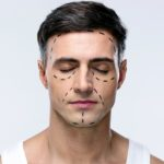 How to Prepare for Plastic Surgery