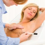 Cosmetic Surgery Tips. Check Out These Tips!